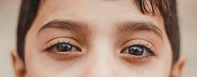 نرم افزار درمان تنبلی چشم - چیکاو