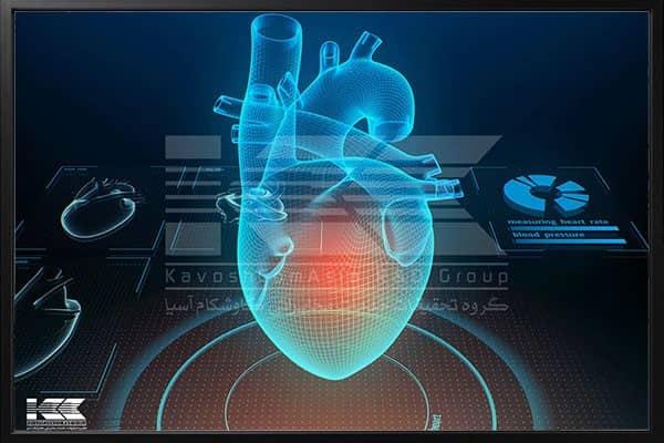 دستگاه نوار قلب و نحوه کارکرد آن - چیکاو